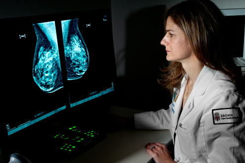 Breast Imaging and Mammography at The Miriam Hospital, RI